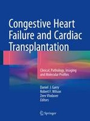 Congestive Heart Failure and Cardiac Transplantation