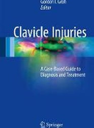 Clavicle Injuries 2017