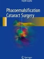 Phacoemulsification Cataract Surgery