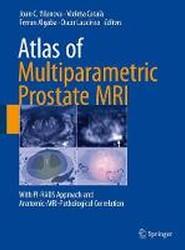Atlas of Multiparametric Prostate MRI