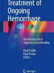Treatment of Ongoing Hemorrhage