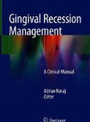 Gingival Recession Management: A Clinical Manual