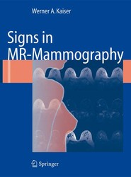 Signs in MR-Mammography