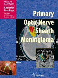 Primary Optic Nerve Sheath Meningioma