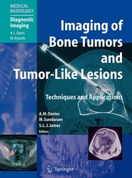 Imaging of Bone Tumors and Tumor-Like Lesions