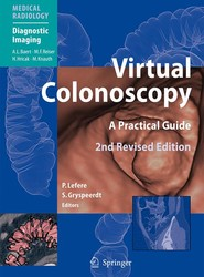 Virtual Colonoscopy