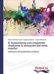 El Tratamiento Con Implantes Mediante La Elevacion del Seno Maxilar