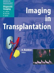 Imaging in Transplantation