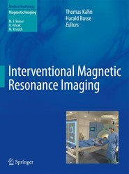 Interventional Magnetic Resonance Imaging