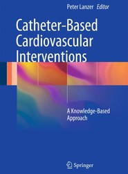 Catheter-Based Cardiovascular Interventions