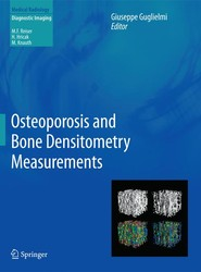 Osteoporosis and Bone Densitometry Measurements
