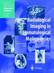 Radiological Imaging in Hematological Malignancies