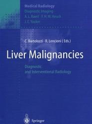 Liver Malignancies