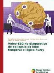 Video-Eeg No Diagnostico de Epilepsia Do Lobo Temporal E Logica Fuzzy