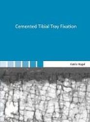 Cemented Tibial Tray Fixation