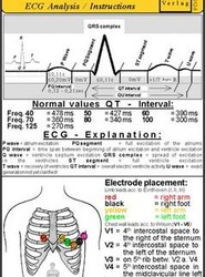 Ecg Analysis/instruction - Medical Pocket Card