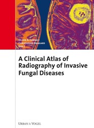 Atlas of Radiography and Clinics of Invasive Fungal Infections