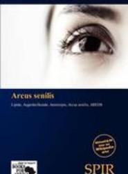 Arcus Senilis