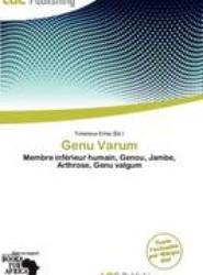 Genu Varum