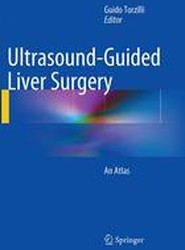Ultrasound-Guided Liver Surgery