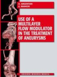 Use of a Multilayer Flow Modulator in the Treatment of Aneurysms