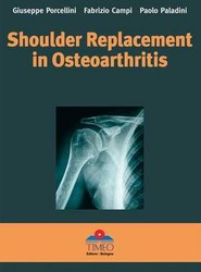 Shoulder Replacement in Osteoarthritis