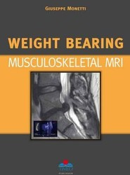 Weight Bearing Musculoskeletal MRI