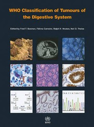 WHO Classification of Tumours of the Digestive System