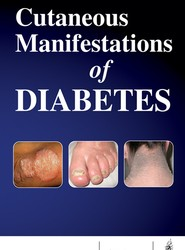 Cutaneous Manifestations of Diabetes
