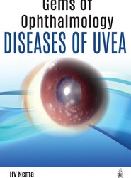 Gems of Ophthalmology: Diseases of Uvea