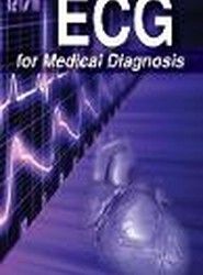 ECG for Medical Diagnosis