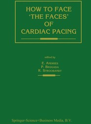 How to face 'the faces' of CARDIAC PACING