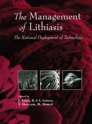 The Management of Lithiasis