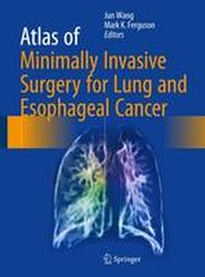 Atlas of Minimally Invasive Surgery for Lung and Esophageal Cancer 2017