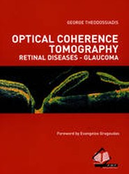 Optical Coherence Tomography Retinal Diseases - Glaucoma