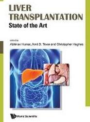Liver Transplantation: State Of The Art