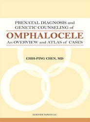 Prenatal Diagnosis and Genetic Counseling of Omphalocele