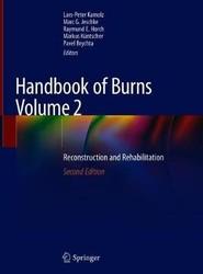 Handbook of Burns Volume 2