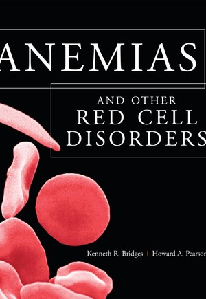 Anemias and Other Red Cell Disorders