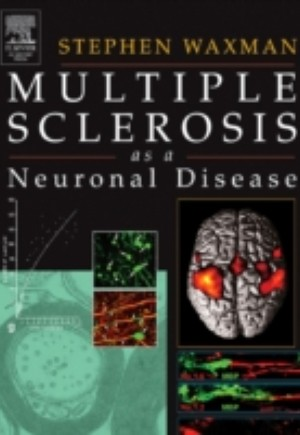 Multiple Sclerosis As A Neuronal Disease