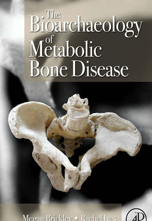 The Bioarchaeology of Metabolic Bone Disease