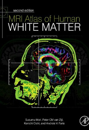 MRI Atlas of Human White Matter
