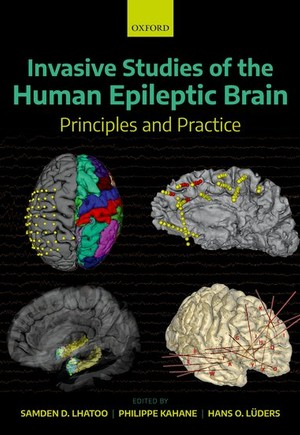 Invasive Studies of the Human Epileptic Brain