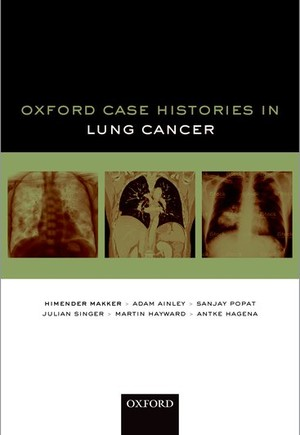 Oxford Case Histories in Lung Cancer