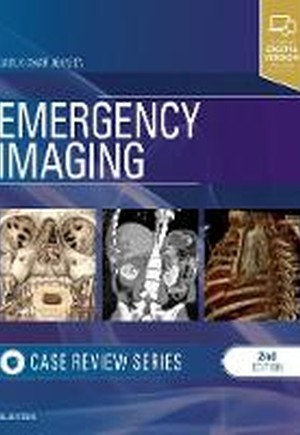 Emergency Radiology: Case Review Series