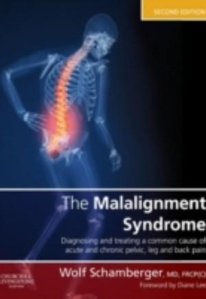Malalignment Syndrome E-Book