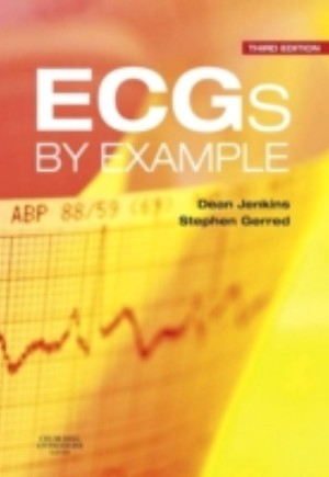 ECGs by Example E-Book