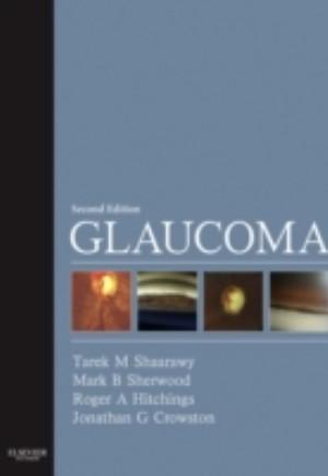 Glaucoma E-Book