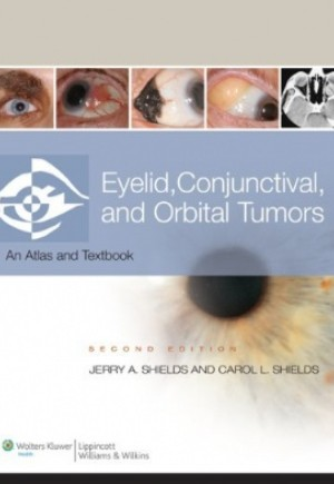 Eyelid, Conjunctival, and Orbital Tumors and Intraocular Tumors