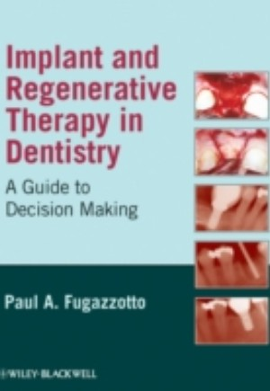 Implant and Regenerative Therapy in Dentistry